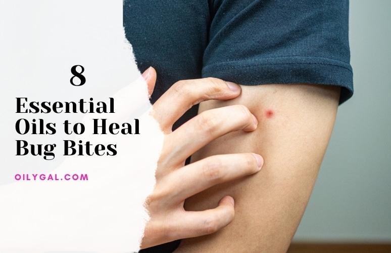 Essential Oils to Heal Bug Bites